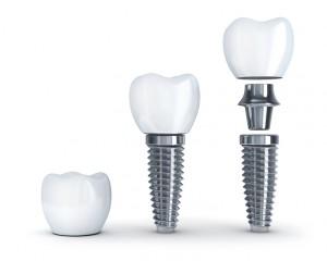 Your dentist explains dental implants in Naples FL