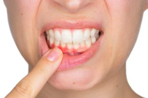 Woman with dental abscess needing an emergency dentist in North Naples.