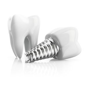 Dental implant and molar