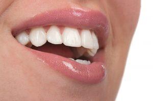 Small teeth treated with veneers